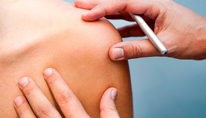 В профилактике рака кожи поможет Этерия