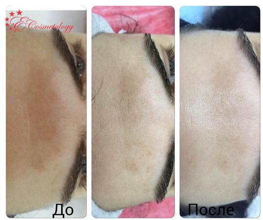 Эффективное осветление пигментных пятен в E Cosmetology. Результаты проведения процедуры