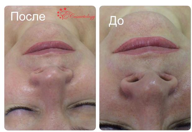 Быстрое восстановление молодости кожи и красоты. Результаты проведения мезотерапии в E Cosmetology