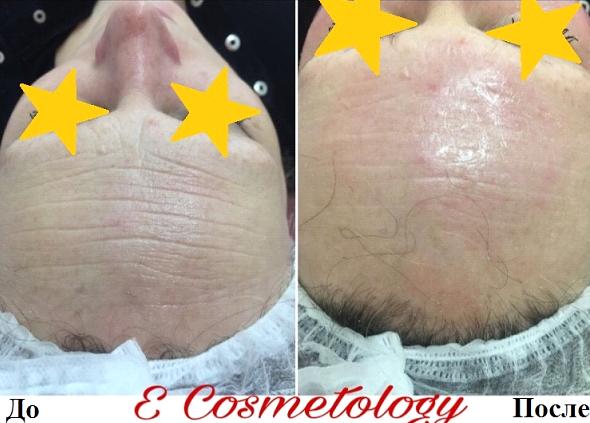 Оставайтесь всегда красивой. Результаты проведения процедур в медико-косметологическом центре E Cosmetology