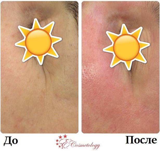 Омоложение и эффективный уход за кожей вокруг глаз. Результаты работы косметологов E Cosmetology