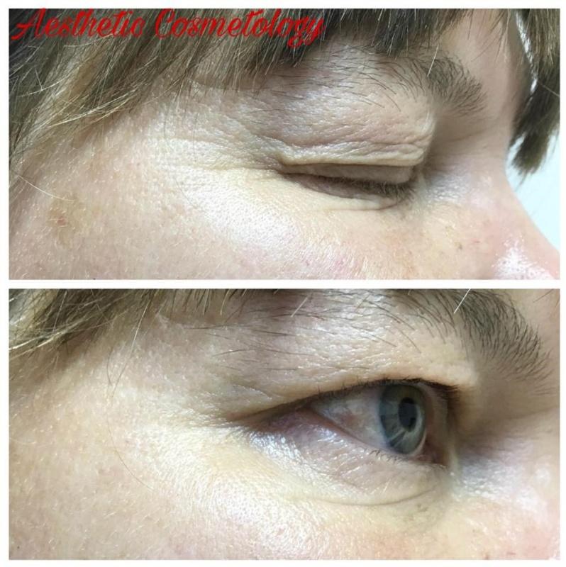 Уход за кожей вокруг глаз и его результаты в медико-косметологическом центре Aesthetic Cosmetology
