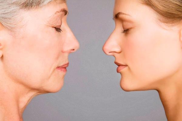 Aesthetic Cosmetology о том, как предупредить возрастные изменения и типах старения кожи