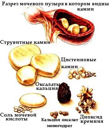 Врач-уролог Владимир Коваленко о мочекаменной болезни, ее лечении и профилактике
