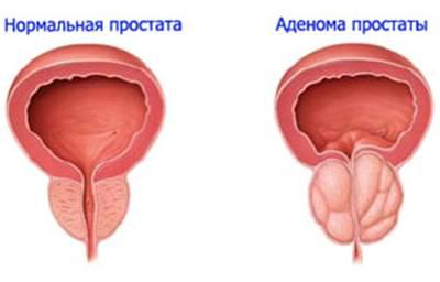 Врач-уролог Владимир Коваленко о том, что делать при подозрениях на простату