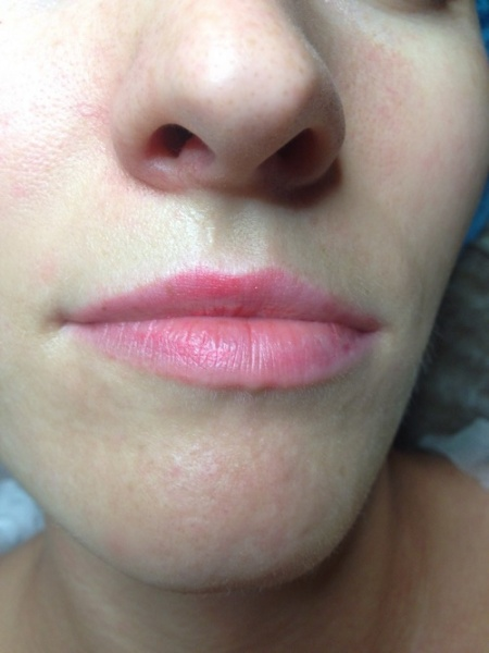 E-Cosmetology: Виды косметологических процедур и реальные результаты